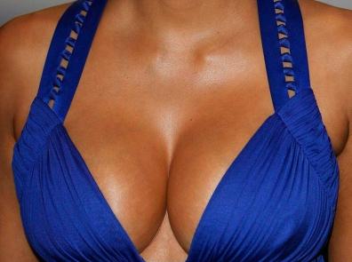 На 30% выросли цены на маммопластику в Москве