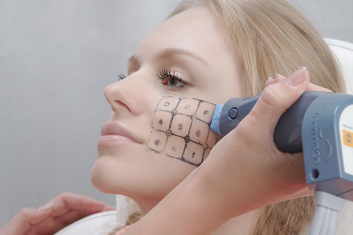 Процедура для омоложения и подтяжки кожи: термаж