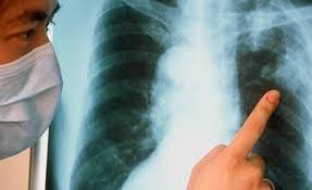 Симптомы характерные для туберкулеза
