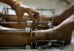 Аппарат Илизарова теперь с успехом применяется в пластической хирургии…