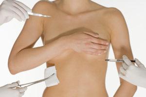 Маммопластика. Возможные риски после операции