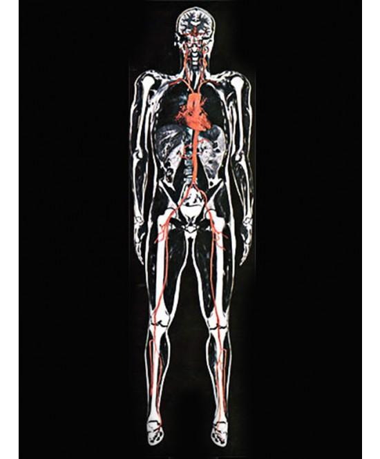 МРТ всего организма