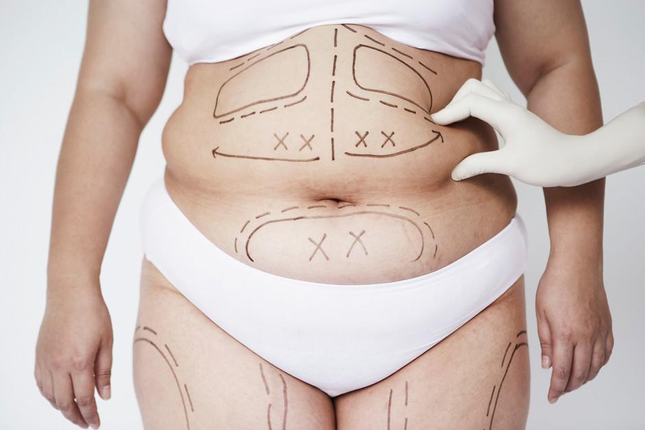 Абдоминопластика: скажем «нет» свисающему животу