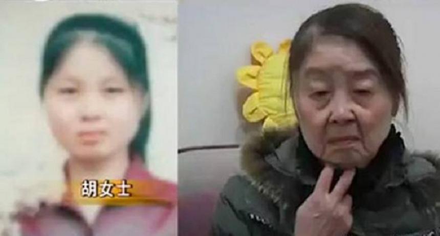Шокирующий случай в Китае – девушка постарела сразу на 40 лет