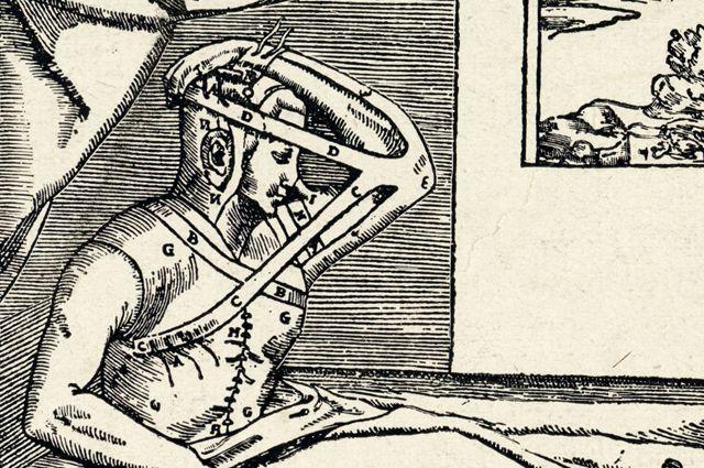 Липосакция и ринопластика. Как развивалась эстетическая хирургия?