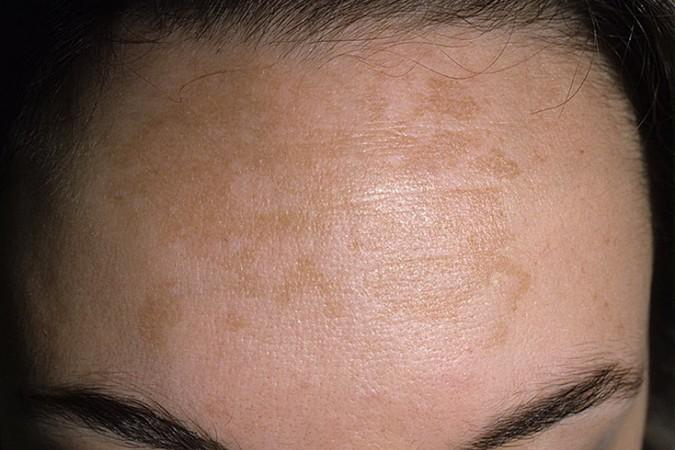 На лице пигментные пятна при беременности