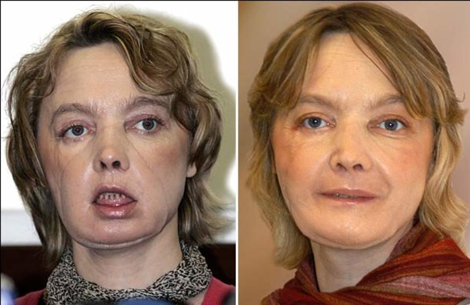 Пластическая операция шрам на лице
