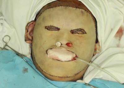 Уникальная операция российских пластических хирургов