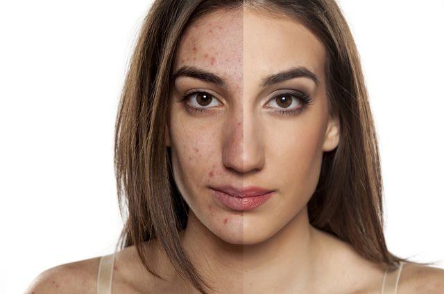 Гладкая кожа. Как бороться с рубцами после акне?
