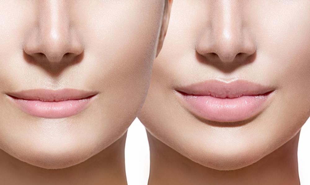 Увеличить губы возможно, используя части собственного тела