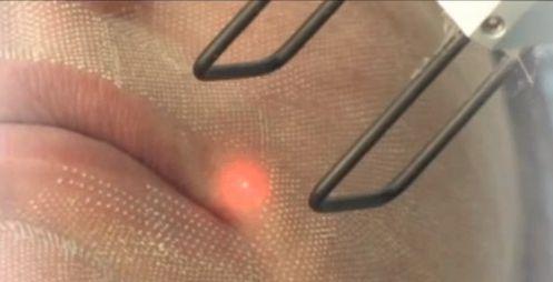 Как действует лазерный эрбиевый пилинг