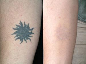 Лазер нового поколения убирает татуировки без последствий для человека