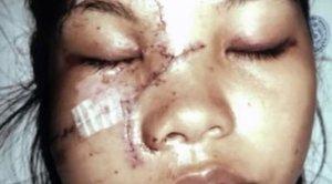 Пластические хирурги вернули девушке красоту