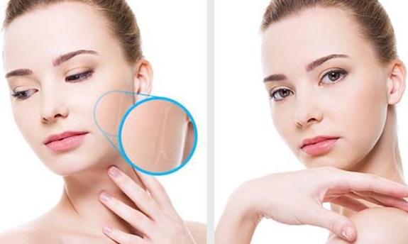Как подготовиться к операции и остаться без шрамов