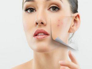 Уход за проблемной кожей лица: распространенные ошибки
