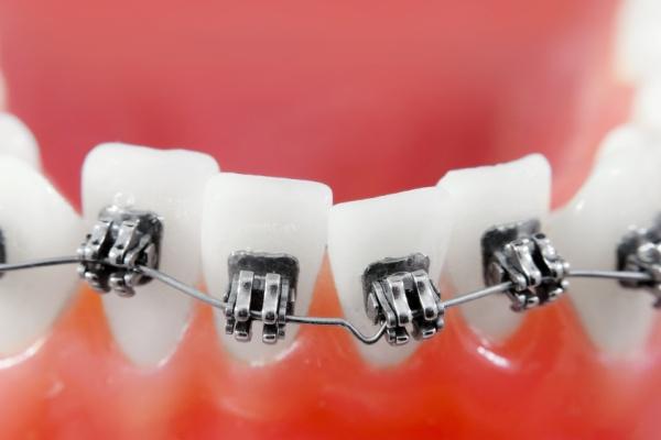 Как можно выровнять кривые зубы