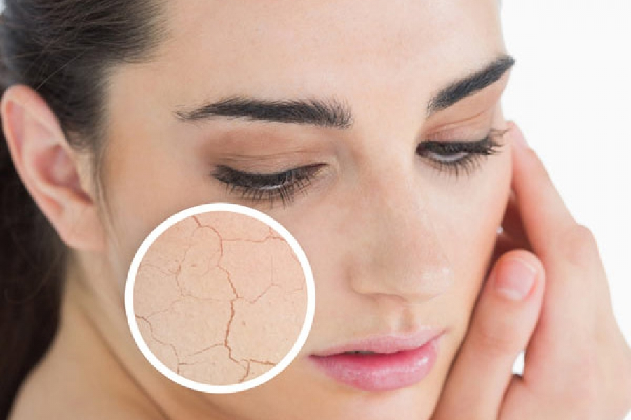 Как помочь сухой коже — советы экспертов