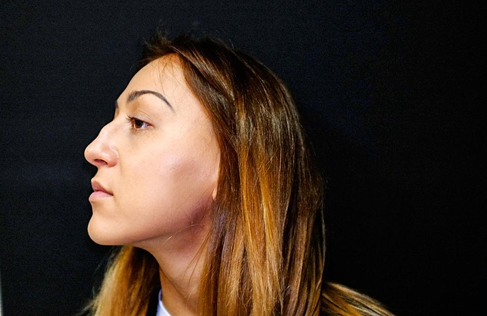 Стоит ли делать операцию по коррекции носа?