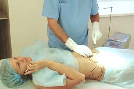 Лазерная косметология: до и после