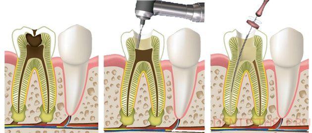 Удаление нерва в зубе