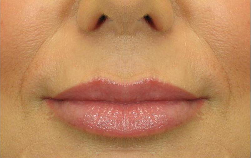 5 способов натурального увеличения объема губ