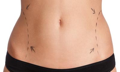 Липосакция снижает риск рака кожи