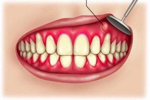 Абсцесс зуба: причины, симптомы, развитие