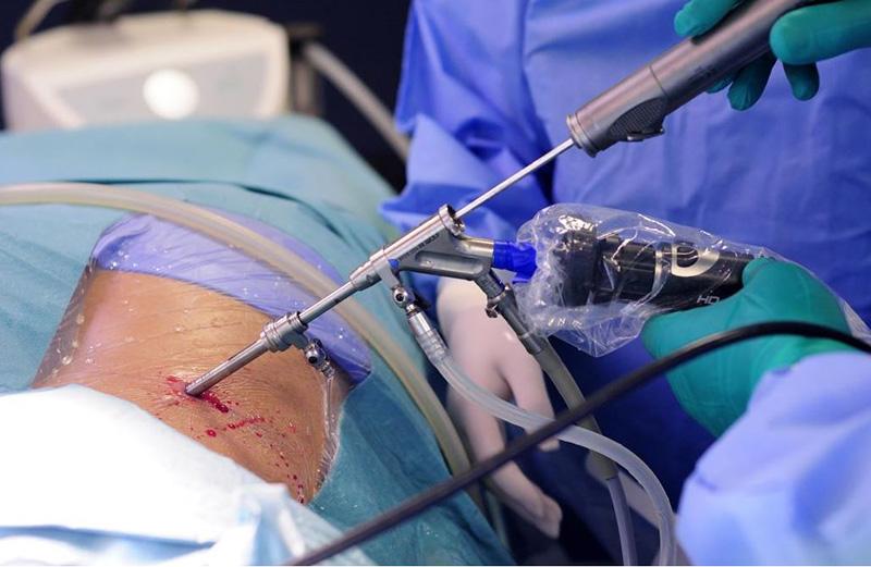 Прогрессивная хирургия. Операции позвоночного столба