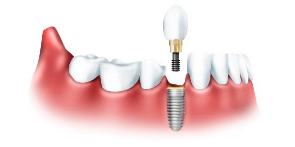 Услуги стоматологической клиники «Микро Денталь»