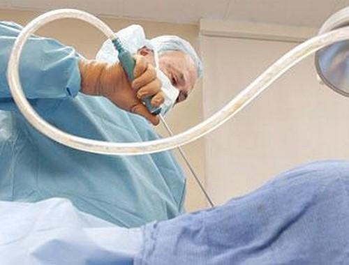 Процедура липосакции: что важно знать