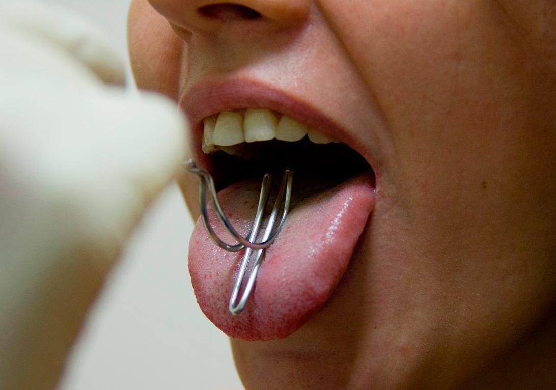 Лазерная пластика уздечек губ и языка