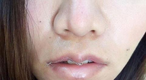 В тренд входят ушитые губы на замену увеличенным.