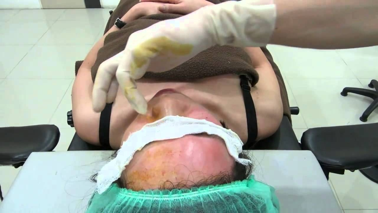 Омоложение путем пересадки жира – новая тенденция в пластической хирургии