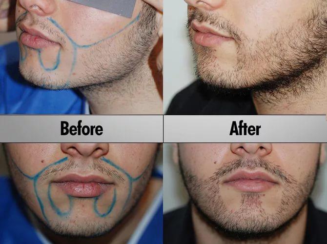 Сколько стоит пересадка волос на бороду