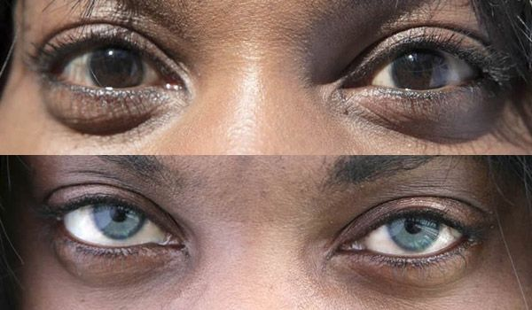 Новинка: операция по смене цвета глаз с помощью имплантов