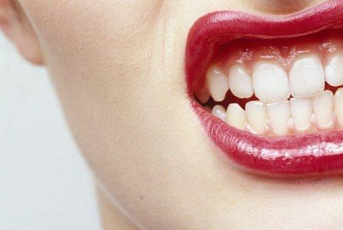Ботокс лечит бруксизм, но разрушает кости челюсти