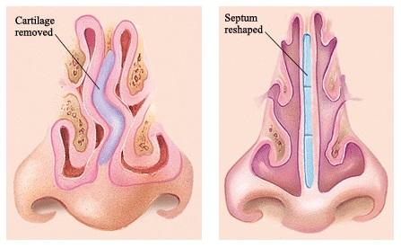 Септопластика — важна не только красота Вашего носа!