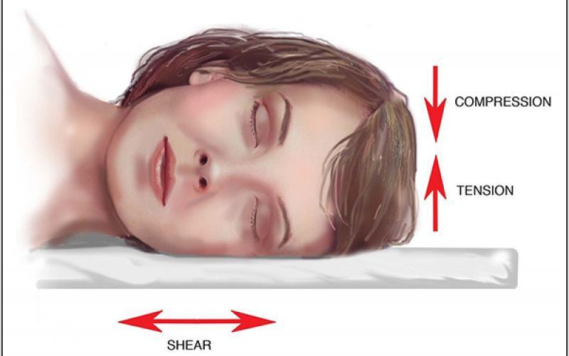 Спальные позы, ускоряющие процесс образования морщин