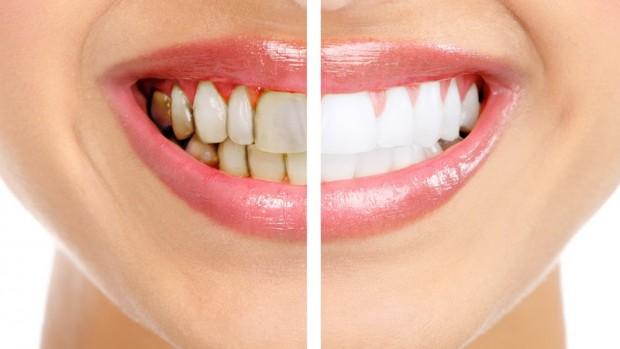 Этапы профессиональной чистки зубов