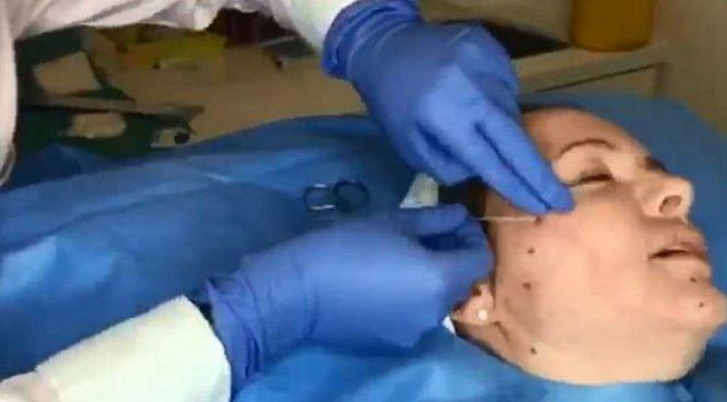 Кукольный фейслифтинг подтянет кожу лица за 30 минут
