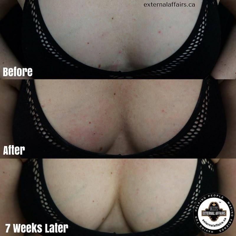 Американки выстраиваются очередь на новую процедуру по подтяжке груди