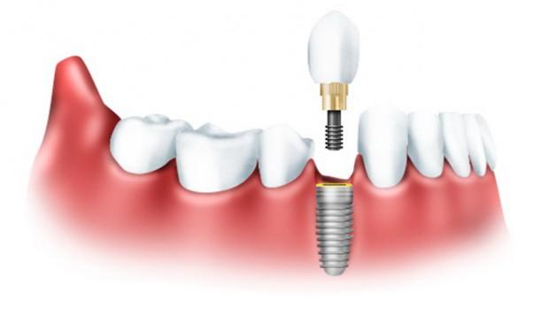 Зубные имплантаты помогают надолго сохранить красивую улыбку