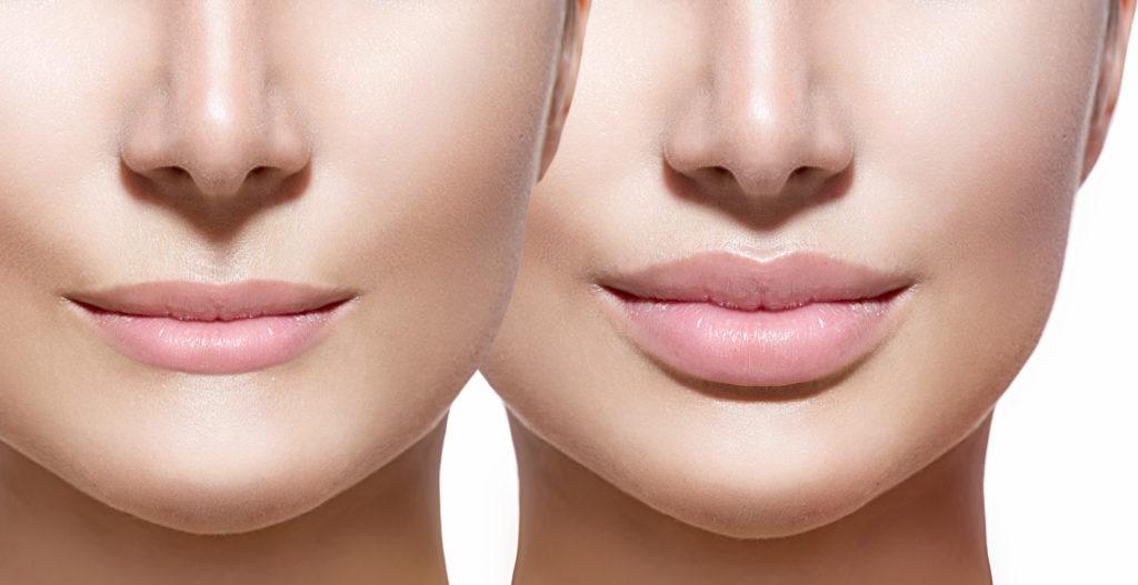 Увеличение губ и коррекция их контура
