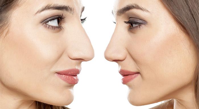 Ринопластика: идеальная форма носа