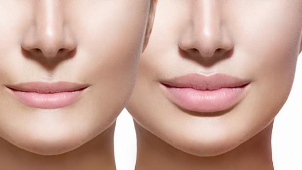 Увеличение губ гиалуроновой кислотой пользуется огромной популярностью