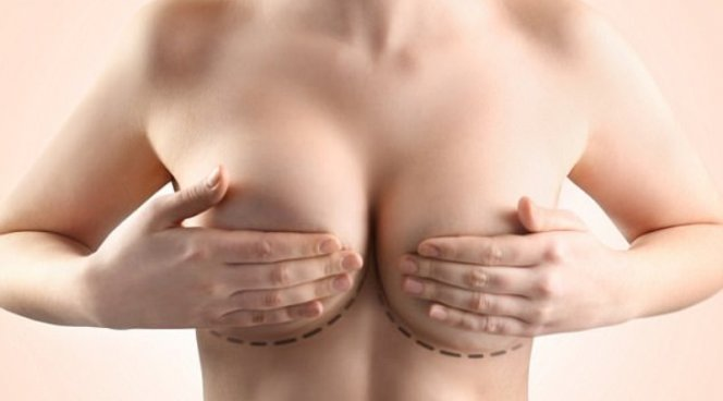 Грудные импланты могут быть причиной редкого рака