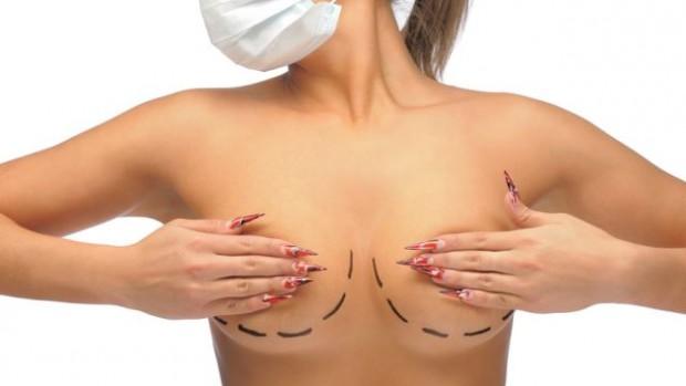При помощи маммопластики можно изменить объём и форму груди, контуры соска и ареолы