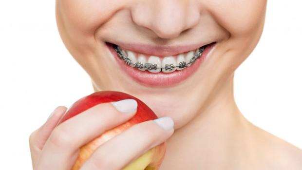 Брекет-системы не только выравнивают зубы, но и формируют правильный прикус