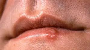 Шрам от герпеса на губе, как убрать? Подсказка в нашей статье