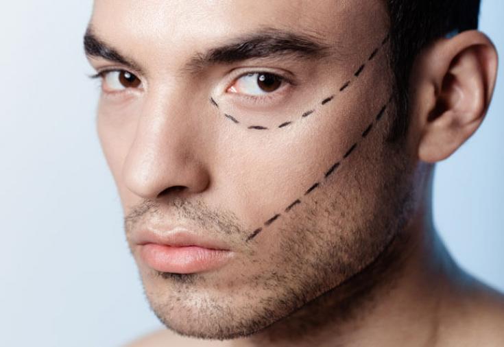 Мужчины, женщины и… пластическая хирургия